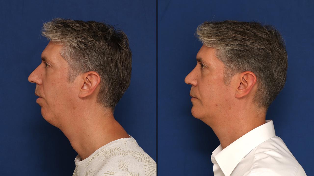 Así es la cirugía estética del futuro: esculpe los huesos de tu rostro sin tocar los tejidos blandos 1